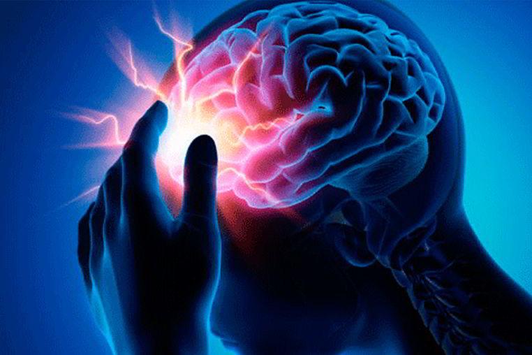 Derrame cerebral sintomas