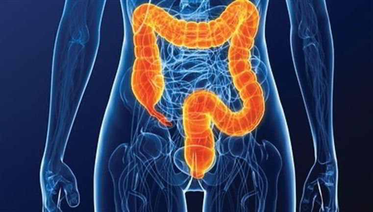 colitis ulcerosa