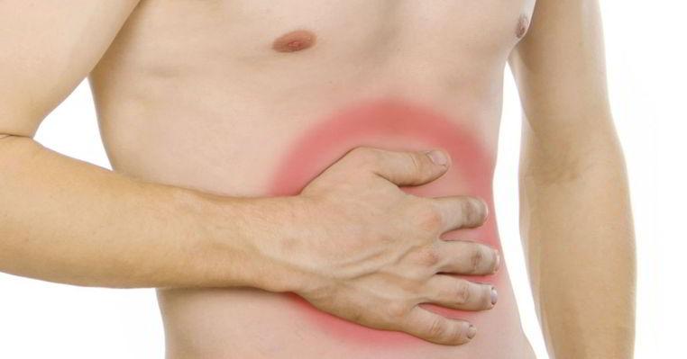 Cuáles son los sintomas de una hernia abdominal y cómo prevenirla?