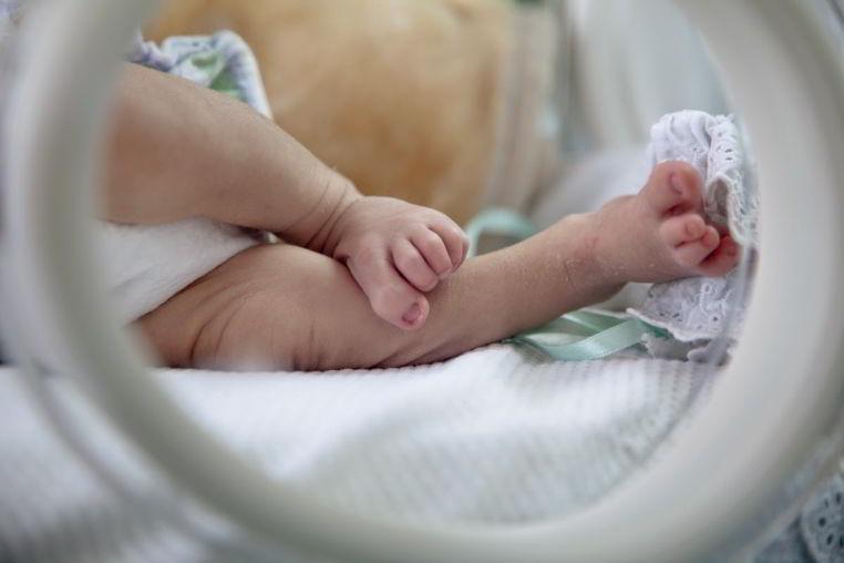 asfixia del bebe