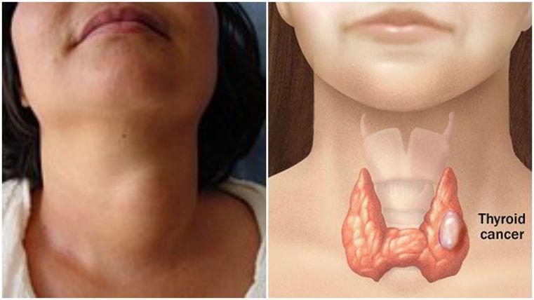 cancer de tiroides