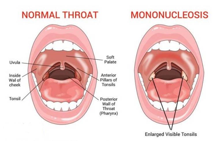tratar la mononucleosis
