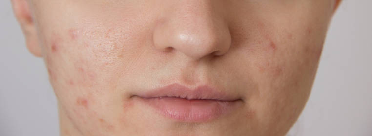 causas de cicatrices en la cara