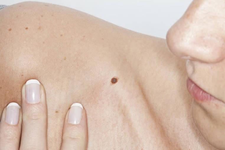 factores de riesgo del cancer de piel