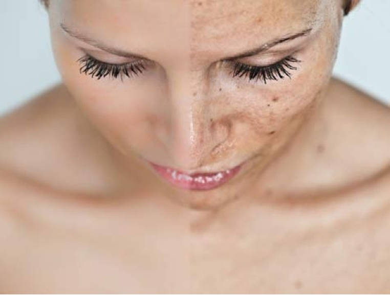 ocultar una cicatriz con maquillaje