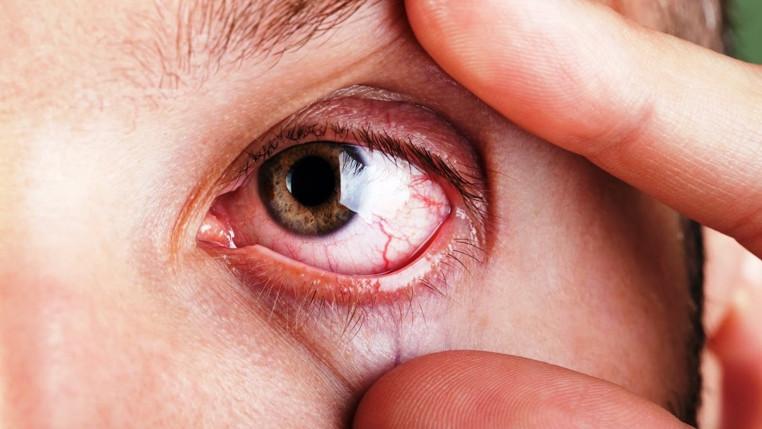 síndrome de ojo seco severo