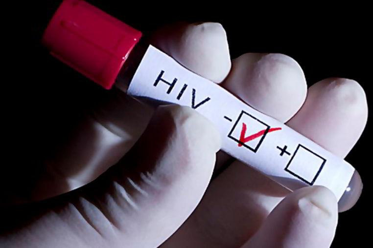 sintomas del VIH
