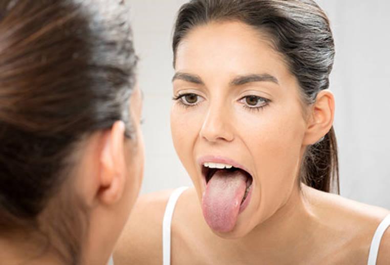 Como reducir la boca seca