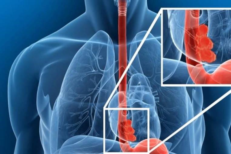 Cancer de esofago esperanza de vida