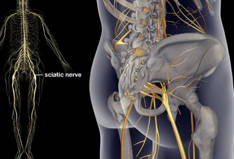 Como aliviar el dolor de ciatica tratamiento