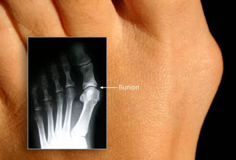 dolor de pies causas