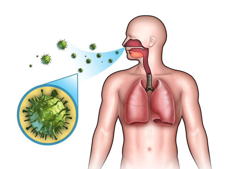 infecciones del tracto respiratorio superior tratamiento natural