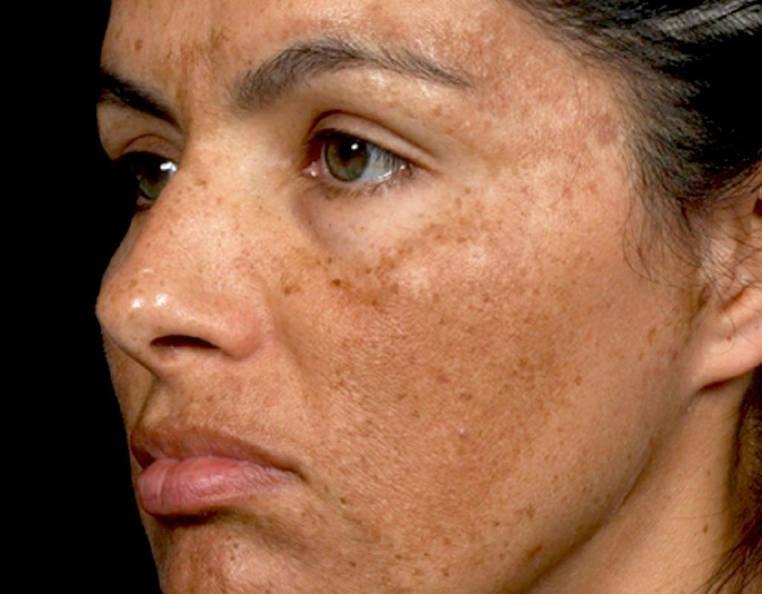 melasma facial tratamiento dermatologico