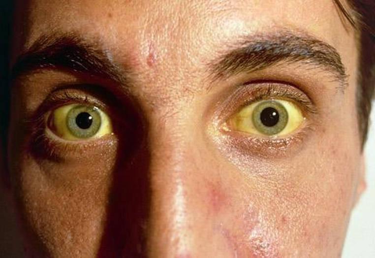 niveles de bilirrubina en adultos