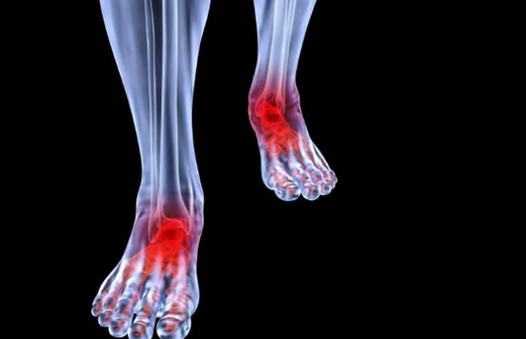 tendinitis del pie tratamiento